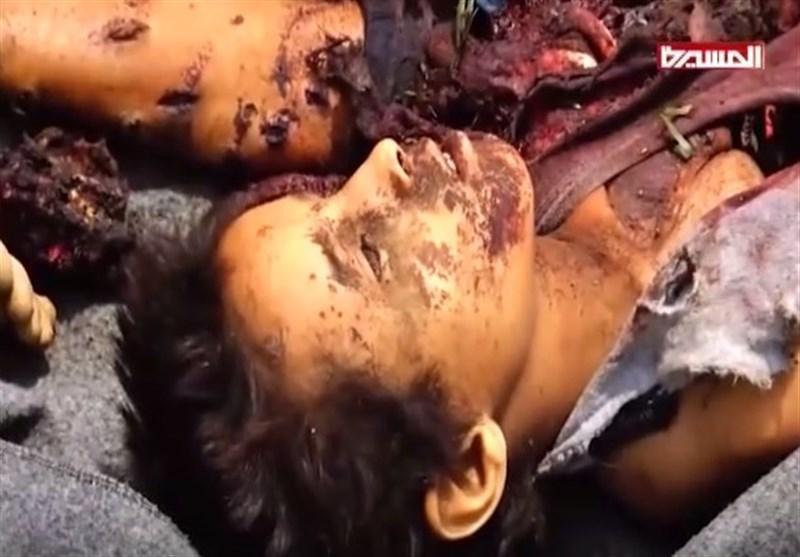کودکان قربانیان حمله عربستان به یمن