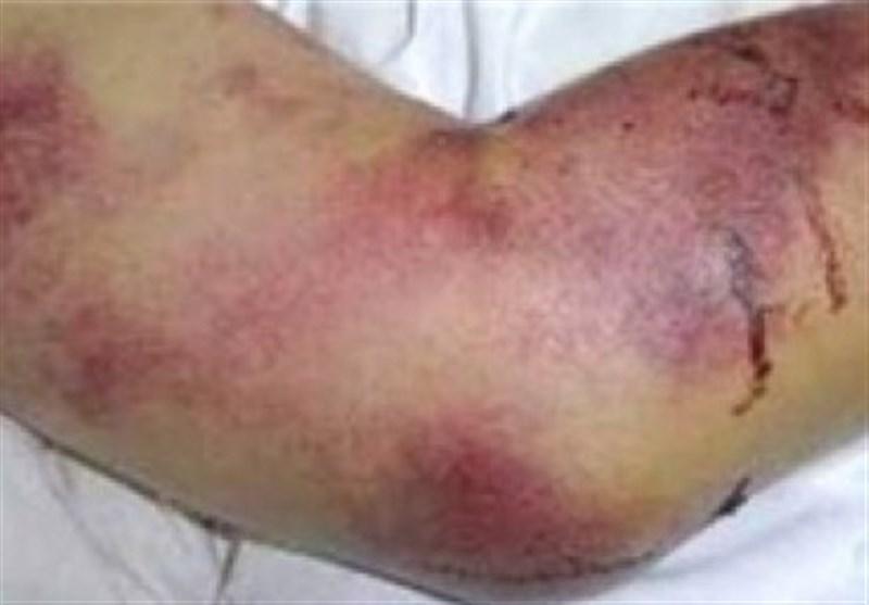 رئیس سازمان دامپزشکی: 60 نفر در کشور به بیماری تب کنگو مبتلا شدند/ 5 نفر فوت کردند