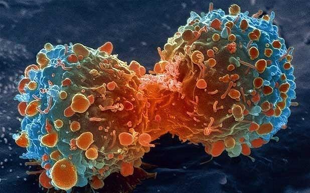 تناول الزعفران والعصفر والثوم والبصل یمنع ظهور السرطان