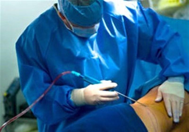 جراحی لیپوساکشن توسط جراحان عمومی ممنوع شد + نظر دیوان عدالت