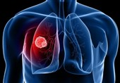Lung Cancer Risk Drops Substantially within Five Years of Quitting: Study