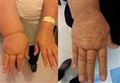 بیماری که با فیزیوتراپی بهبود مییابد / علائم و پیشگیری از «لنف ادم»