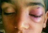 تنبیه بدنی دانش آموز بمپوری