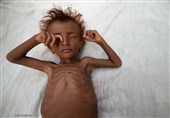 کودکان گرسنه یمنی