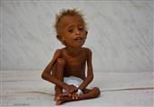 Birleşmiş Milletlerin Uyarısı: Yemen'de Bir Nesil Yok Olabilir