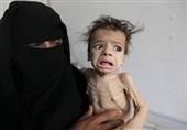 گرسنگی در یمن 1