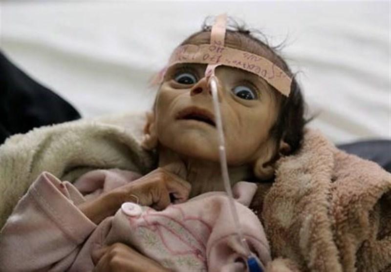 گرسنگی در یمن 2