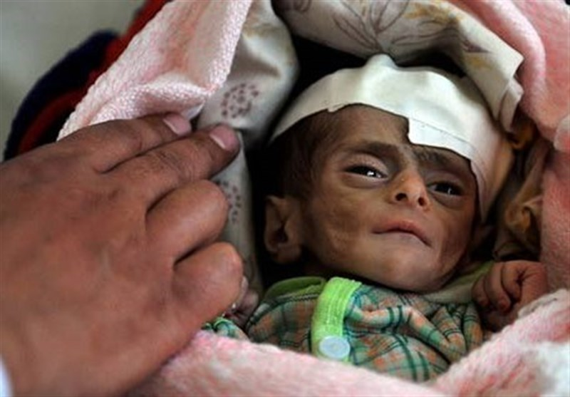 الامم المتحدة: ملیونان و200 ألف طفل یمنی یعانون من سوء تغذیة حاد