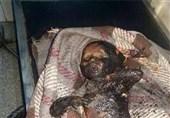 یمن میں آل سعود کے المناک جرائم/ تصویری رپورٹ
