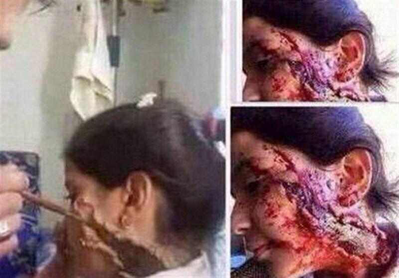 الجزیره و گریم مرگ بر چهره دخترک سوری+عکس
