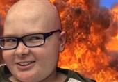 کودک 12 ساله مبتلا به سرطان