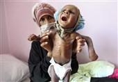 سوء تغذیه بیش از 2 میلیون کودک یمنی؛ 52 هزار نفر شهید و زخمی شدهاند