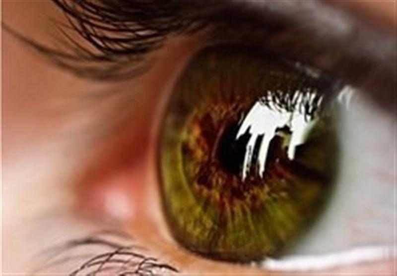 تدابیر مراقبت از «چشم» بر اساس کتاب حفظهالصحه ناصری