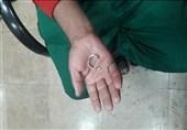 انگشترهایی که دردسرساز میشوند