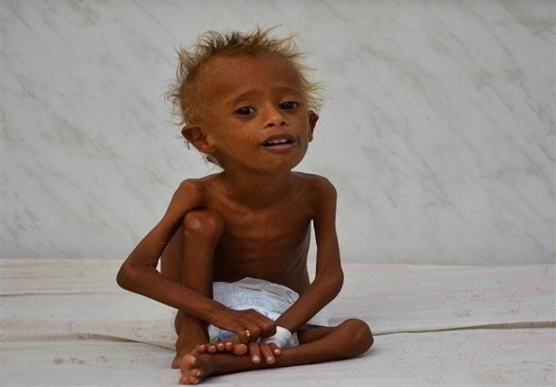 Birleşmiş Milletler Yemen'de Kıtlık Konusunda Uyardı
