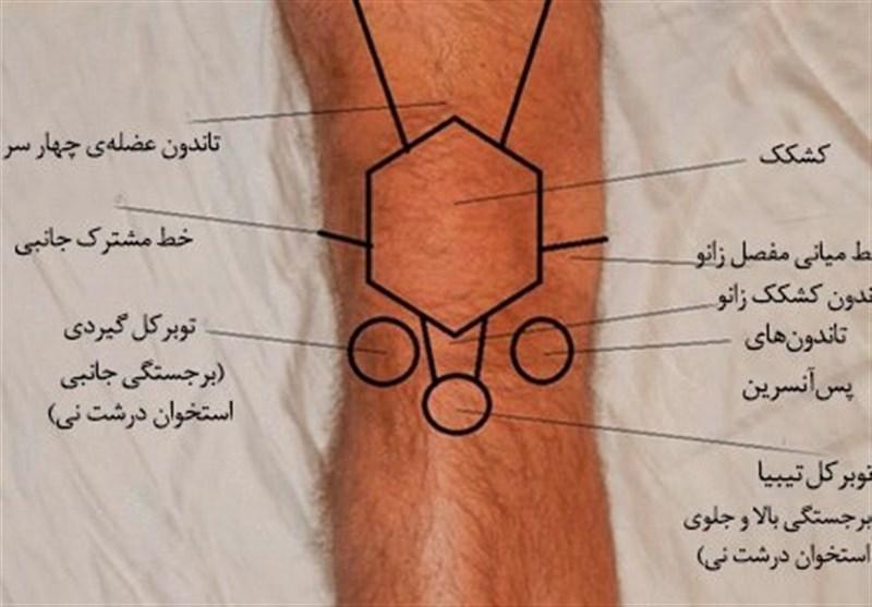 نوعی بیماری عجیب استخوانی/تودهای که در ران پا رشد میکند