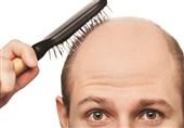 """روش ساخت یک ترکیب گیاهی ساده برای جلوگیری از """"ریزش مو"""""""