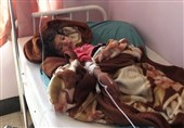 Cholera Death Toll Rises to 1,054 in Yemen