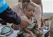 Yemen Sağlık Bakanı: Savaş Ve Abluka En Çok Çocukları Vuruyor