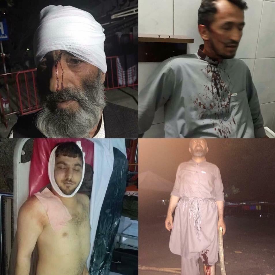 حمله به معترضان کابل؛ اقتدار اشرف غنی یا اعلام جنگ علیه حزب «جمعیت» + عکس