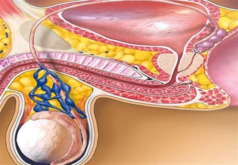 چند روش ساده طب سنتی برای درمان «واریکوسل»