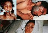 بمباران شیمیایی سردشت به روایت یک پرستار+عکس