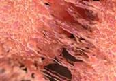 باحثون ایرانیون ینتجون مواد جدیدة تساعد فی الکشف عن الخلایا السرطانیة
