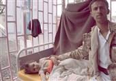 جان باختن 913 یمنی بر اثر ابتلا به وبا از ابتدای 2019