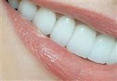 سه عیب دندانهای هالیودی