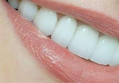 مشکلات گوارشی می تواند باعث خرابی دندان ها شود