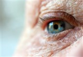 Blindness Study Shows How Gene Causes Middle-Age Sight Loss