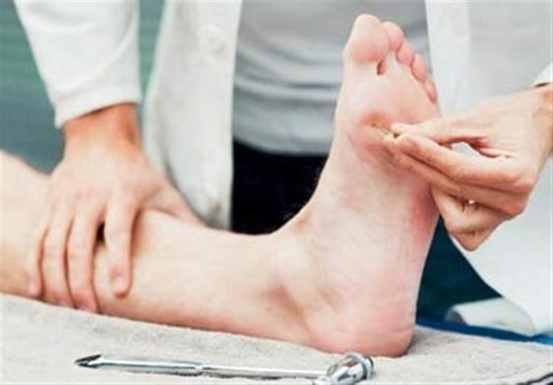 زخم پاي ديابت
