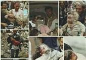یمن| اعلام آمار قربانیان جنایت سعودی از سوی یونیسف/ درگیری قبایل المهره با اشغالگران سعودی