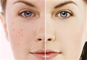 """راز برخورداری از """"پوستی شفاف، جوان و زیبا"""" چیست + نسخه درمانی طب سنتی"""