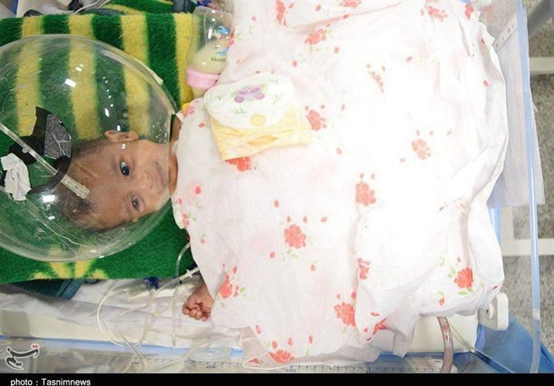 توده 660 گرمی از کمر نوزاد یک روزه در قزوین برداشته شد