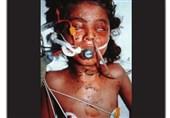 برپایی نمایشگاه بوی بادام در سالگرد بمباران شیمیایی سردشت