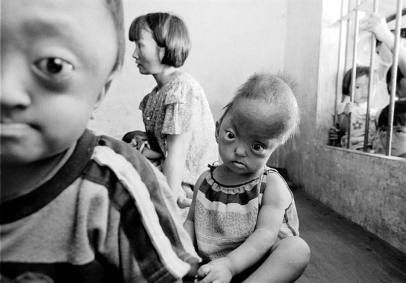 عامل شیمیایی آمریکایی چه تاثیری بر کودکان ویتنامی گذاشت؟+عکس