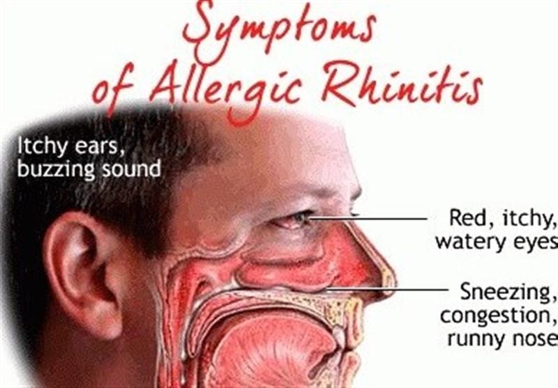 """درمان بیماران مبتلا به """"رینیت آلرژی"""" با انجام حجامت + مستندات"""