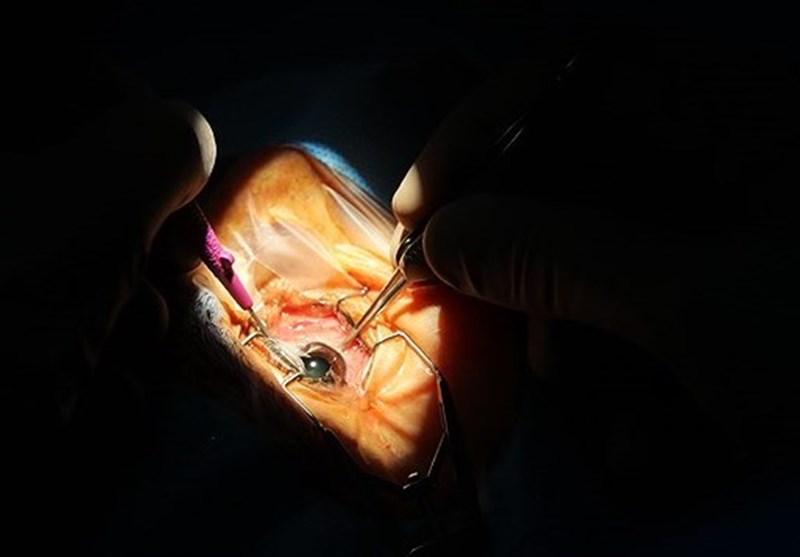 بیماری چشمی که از سرطان چشم موذیتر است