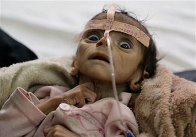 نگاهی به کابوس قحطی و بدبختی و گرسنگی در یمن