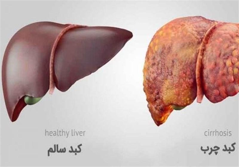 درصد ایرانیها مبتلا به کبد چرب