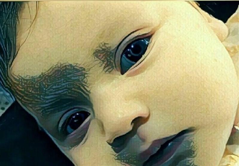 """فرشته کوچولو در"""" کما"""""""