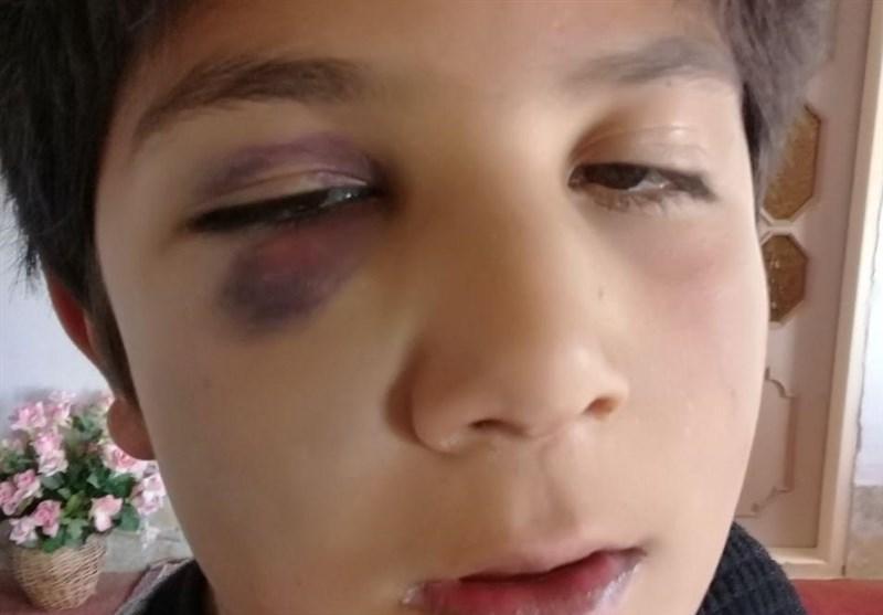 زنجان|ماجرای تنبیه بدنی در ایجرود؛ پرونده معلم متخلف به مراجع قانونی ارسال میشود - اخبار تسنیم - Tasnim
