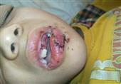 روایت یک پدر از آسیب فرزندش در مدرسه و ناکارآمدی بیمه حوادث