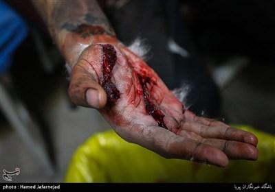 مصدومان چهارشنبه آخر سال در بیمارستان ۱۵ خرداد