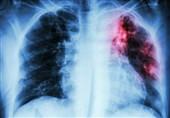 پاکستان؛ ٹی بی کے ایک لاکھ 21 ہزار مریضوں کا علاج چھوڑنا صحت مند افراد کو مرض میں مبتلا کرنے کا سبب