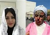 توضیح پزشکی قانونی درباره پرونده اسیدپاشی در تبریز