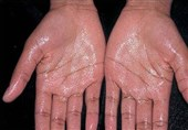 """""""عرق کف دست"""" خود را جدی بگیرید + راهکار درمانی"""