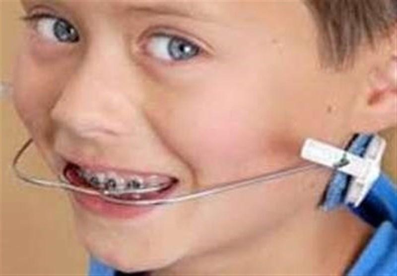 سه علت ناهنجاری دندان کودکان/ تفاوت ارتودنسی ثابت با متحرک