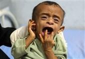 علت خروج کارکنان صلیب سرخ از یمن اعلام شد/ وقوع یک فلج عظیم